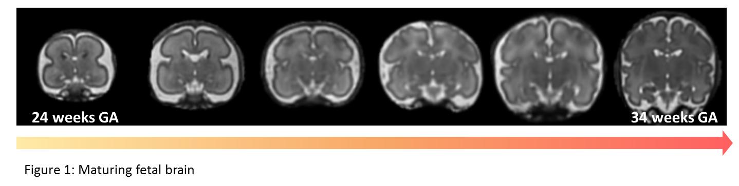 Figure 1: The maturing metal brain from 24 weeks GA to 34 weeks GA.
