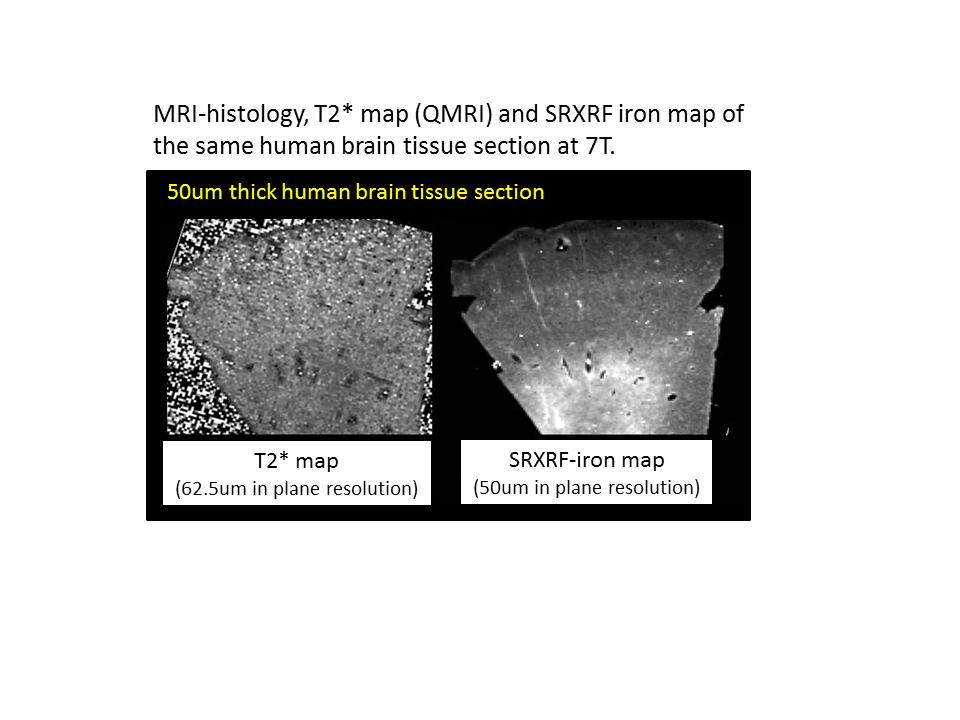 Mining for iron in the brain: a deep learning approach
