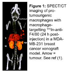 Figure 1: SPECT/CT imaging of pro-tumourigenic macrophages with macrophage-targeting 111In-anti-F4/80 (24 hours post-injection) in MDA-MB-231 breast cancer xenograft model. The arrow indicates the tumour. Please refer to reference 1.