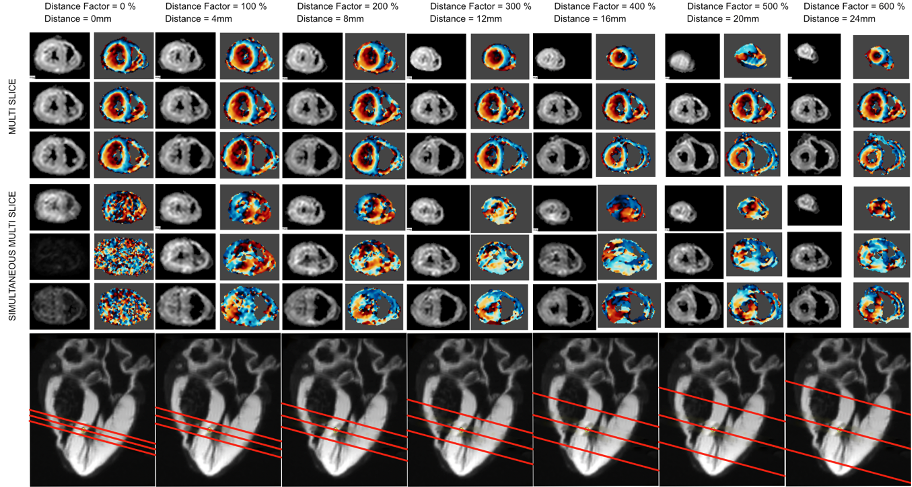 Multi-slice and SMS DT-CMR acquisitions in an ex vivo heart. As the distance between simultaneously acquired slices decreases, the image quality of the diffusion weighted images degrades due to interslice-leakage artefacts.