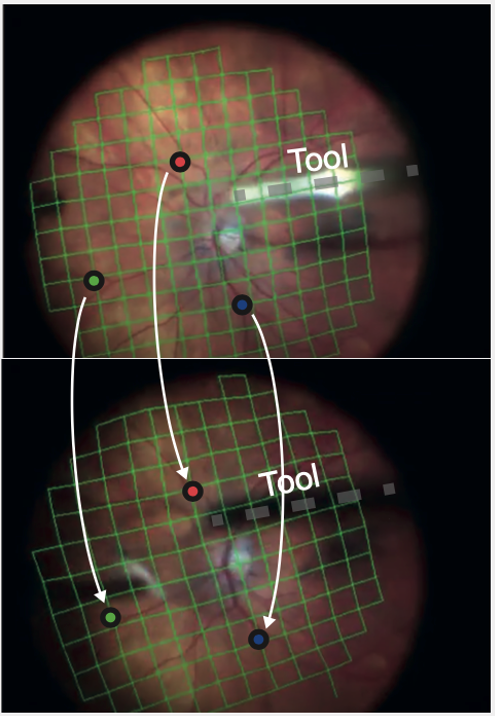 Example of the proposed tracking framework applied in a pair of sequential frames. Optical flow and tracking allows following points through the video stream, while tool segmentation ultimately enables robotic imaging using intraoperative Optical Coherence Tomography.
