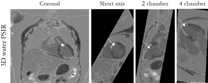 Example of a patient with scar (arrows) shown as bright signal. The 3D image was acquired in 6 min 28 sec, with resolution of 2mm. The image is resliced into standard views (coronal, short and 2 chamber and 4 chamber). PSIR: phase sensitive inversion recovery.