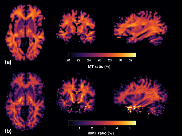 Figure 1:Comparison between MT ratio (a) and ihMT ratio in the human brain