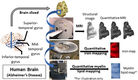 Figure shows a typical workflow for the multi-modality correlative imaging of brain samples (of age-matched control and Alzheimer's disease), encompassing quantitative MRI and physico-chemical quantitative mapping of iron and myelin.