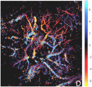 ). The state-of-the-art super resolved microvascular flow velocity map (right) of a tissue structure of ~4mm in size (Zhu J et al Radiology 2019)