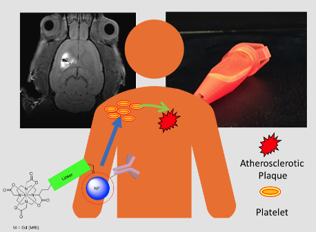 Scheme showing a nanoparticle functionalised with MRI contrast agent and targeting unit for the identification of platelets in the diagnosis of atherosclerosis with background images illustrating MRI and optical imaging modalities.