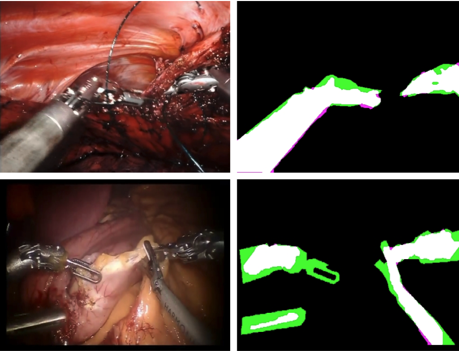 Representative  sample images of robotic surgery (left)  and state-of-the-art instrument segmentation results (right). True positive (white), true negative (black), false positive (magenta), and false negative (green).