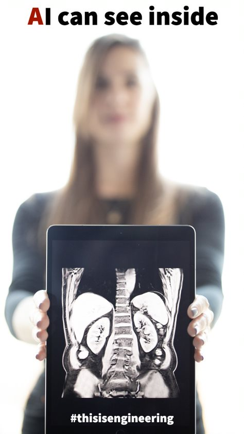 AI can see inside text at the top of the image. A woman is holding a tablet in front of her which shows a medical imaging device-generated picture of her bones and says #thisisengineering at the bottom, underneath the picture.